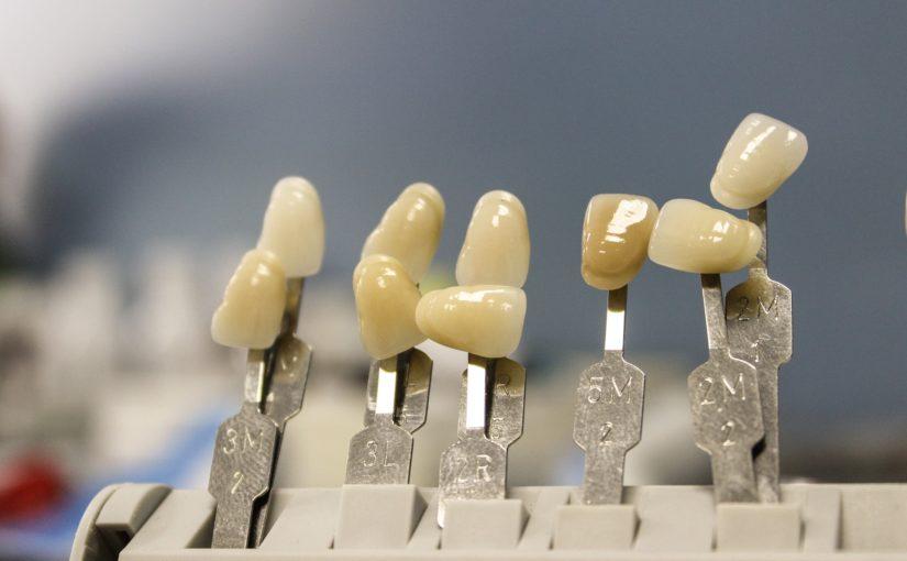 Piękne urodziwe zęby także niesamowity prześliczny uśmiech to powód do zadowolenia.